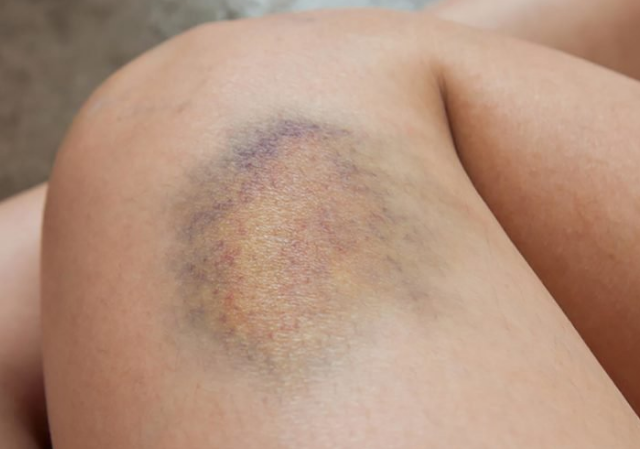How to Get Rid of Bruises?