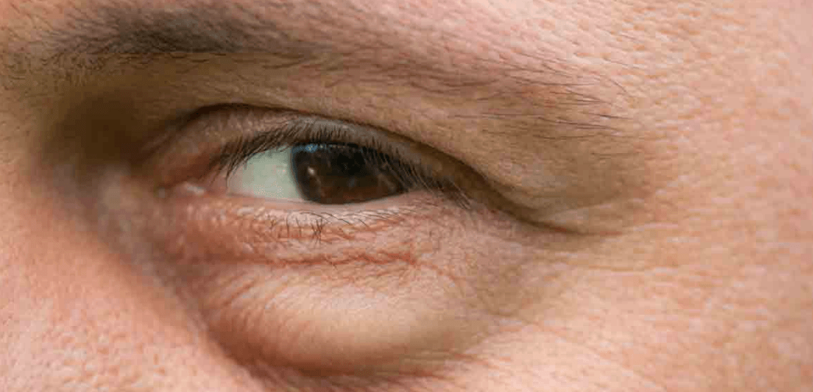How To Get Rid Of Bags Under Eyes?