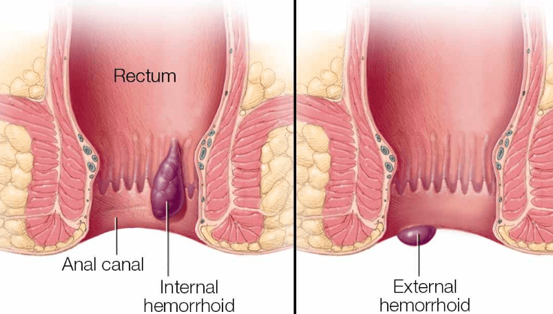 How to Get Rid Of Hemorrhoids?